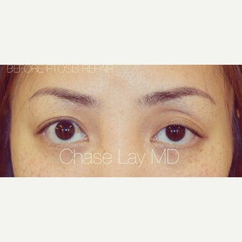25-34 year old woman treated with Asian Eyelid Surgery and ptosis repair before 2574254