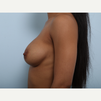 Breast Augmentation after 3459676