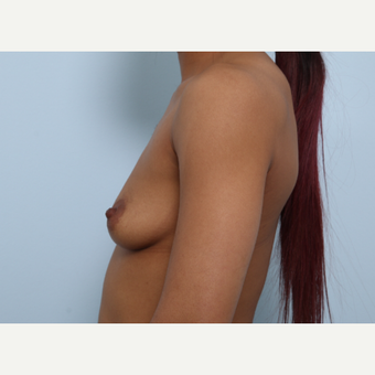 Breast Augmentation before 3459676