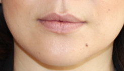 Lip Implants before 944168