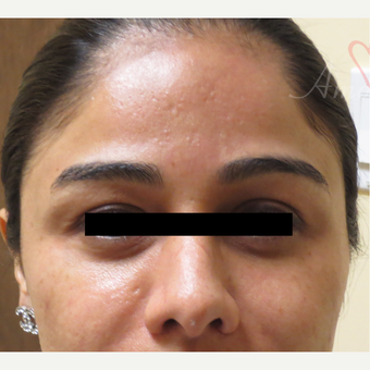 25-34 year old woman treated with Fractional Laser before 3375004