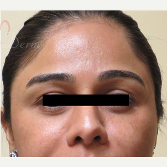 25-34 year old woman treated with Fractional Laser after 3375004