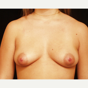 25-34 year old woman treated with Breast Augmentation before 3523632