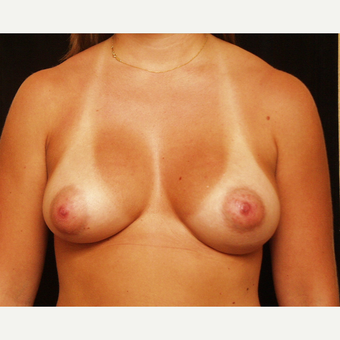 25-34 year old woman treated with Breast Augmentation after 3523632