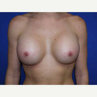 Breast Augmentation after 3744111