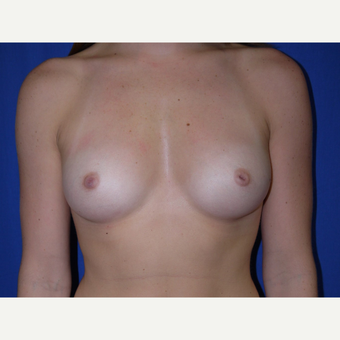 Breast Augmentation before 3744111