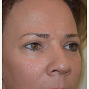 35-44 year old woman treated an upper eyelid blepharoplasty and lower eyelid volume replacement. after 3479833