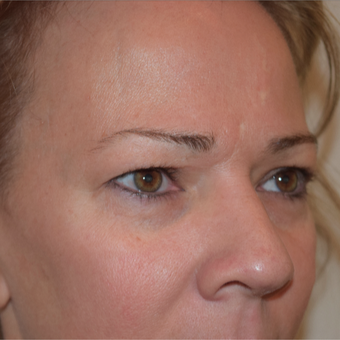 35-44 year old woman treated an upper eyelid blepharoplasty and lower eyelid volume replacement. before 3479833