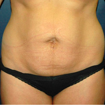 35 year old woman treated with Tummy Tuck before 3578538