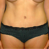 35 year old woman treated with Tummy Tuck after 3578538