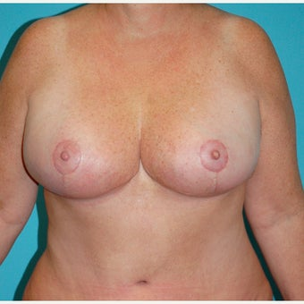 45-54 year old woman treated for Breast Reduction after 2615680