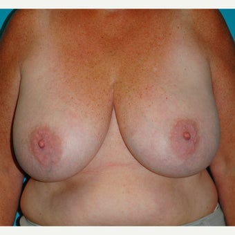 45-54 year old woman treated for Breast Reduction before 2615680