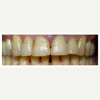 Perio, Braces and Retention after 3128392