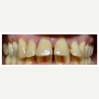 Perio, Braces and Retention before 3128392