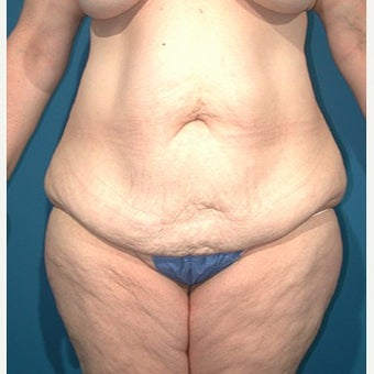 45-54 year old woman treated with Liposuction before 1981968