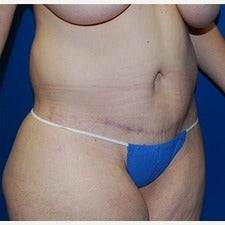 45-54 year old woman treated with Liposuction 1981968