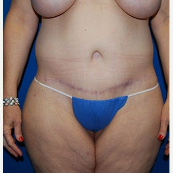 45-54 year old woman treated with Liposuction after 1981968