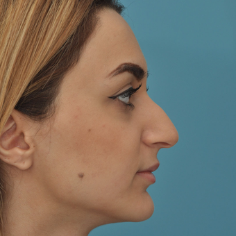 25-34 year old woman treated with Rhinoplasty before 3524701