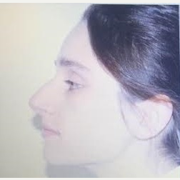 25-34 year old woman treated with Rhinoplasty before 3260857