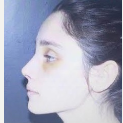 25-34 year old woman treated with Rhinoplasty after 3260857