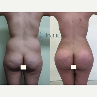 18-24 year old woman treated with Brazilian Butt Lift before 3538798