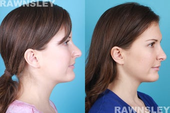 Revision Rhinoplasty after 985221