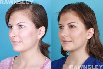 Revision Rhinoplasty before 985221