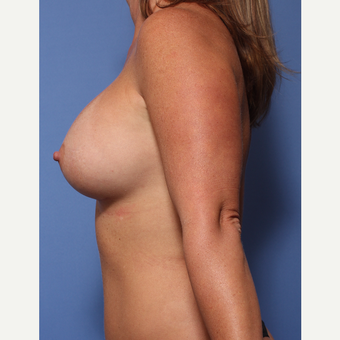 35-44 year old woman treated with Breast Augmentation after 3782940