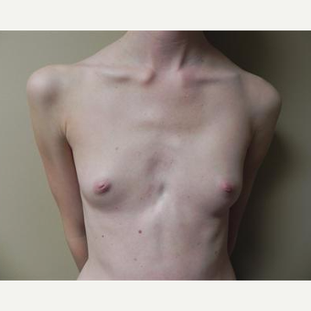 18-24 year old woman treated with Breast Augmentation before 3378476