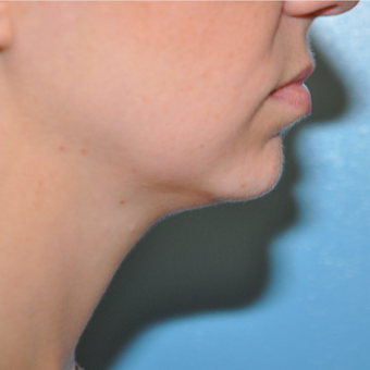 25-34 year old woman treated with Chin Implant before 3059646