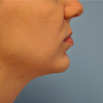 25-34 year old woman treated with Chin Implant after 3059646