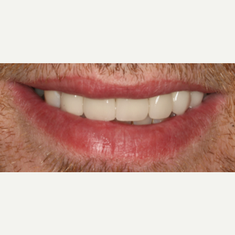 35-44 year old man treated with Smile Makeover after 3092270