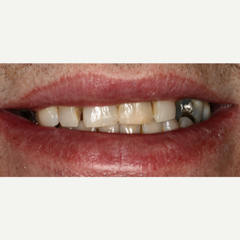 35-44 year old man treated with Smile Makeover before 3092270