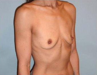 Fuller Breasts for 42 Year old Woman 1371056