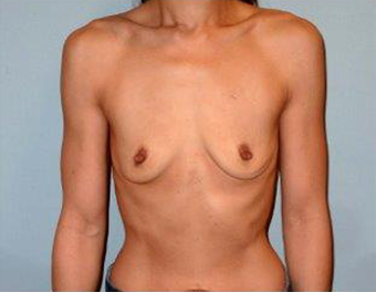 Fuller Breasts for 42 Year old Woman before 1371056