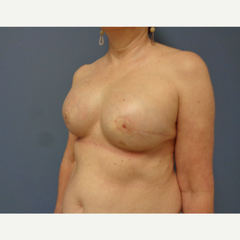 55-64 year old woman treated with Breast Reconstruction after 3737958
