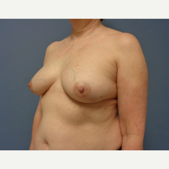 55-64 year old woman treated with Breast Reconstruction before 3737958