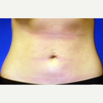 25-34 year old woman treated with Liposuction after 2998899