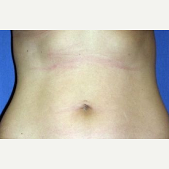 25-34 year old woman treated with Liposuction before 2998899