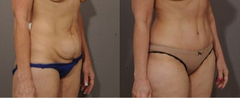 47 year old woman treated with Tummy Tuck after 2148331