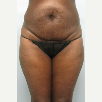 45-54 year old woman treated with Tummy Tuck before 1545342
