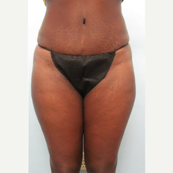 45-54 year old woman treated with Tummy Tuck after 1545342