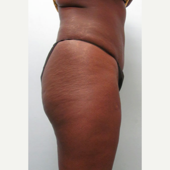 45-54 year old woman treated with Tummy Tuck 1545342