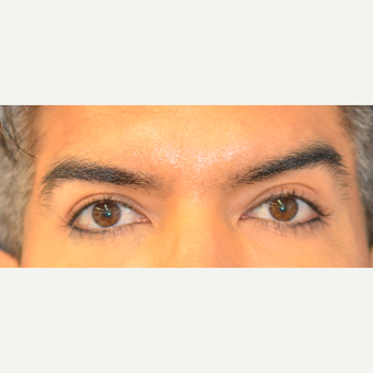 35-44 year old man treated with Eye Bags Treatment after 3617021