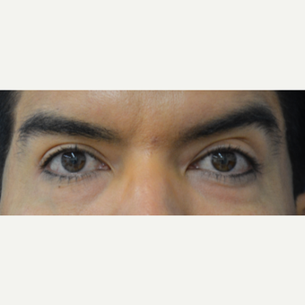 35-44 year old man treated with Eye Bags Treatment before 3617021