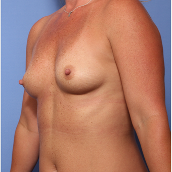 35-44 year old woman treated with Breast Augmentation before 3782949