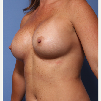 35-44 year old woman treated with Breast Augmentation after 3782949