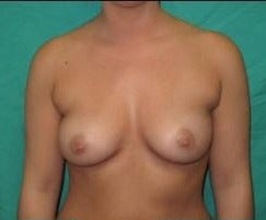 18-24 year old woman treated with Breast Augmentation before 3482177
