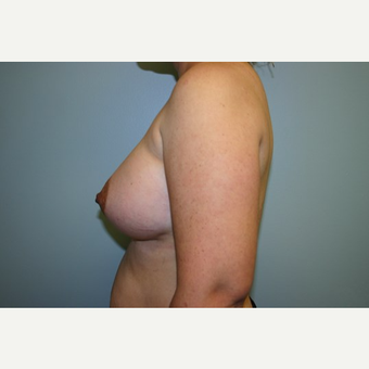 Breast Augmentation after 3560639