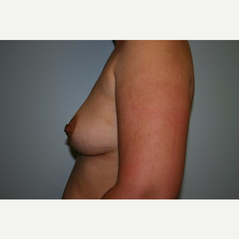 Breast Augmentation before 3560639